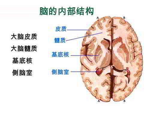 大脑的内部结构:大脑皮质、大脑髓质、基底核、侧脑室